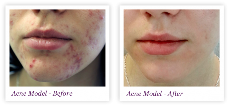 Acne Model - Before & After